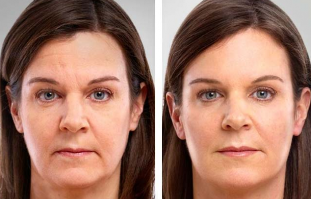 before and after free sample wrinkle cream
